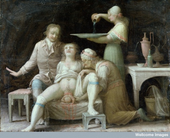 L0015387 A birth-scene. Oil painting by a French (?) painter, Åbo, Sw Credit: Wellcome Library, London. Wellcome Images images@wellcome.ac.uk http://wellcomeimages.org A birth-scene. Oil painting by a French (?) painter, Åbo, Sweden (later Turku, Finland), 1800. The proud father is on the left, the woman giving birth is in the centre, and on the right is a caricature of a midwife or wisewoman. The standing figure pouring water into a bowl may be a personification of Hygiene, as a similar figure appears on a Wedgwood plaque of the goddess Hygieia. At the same time she is the maid who is preparing to wash the baby. The furniture is of an advanced neo-classical type: it would be slightly surprising if such furniture were in Åbo at the time. The painting may be by a French painter in Sweden. Oil 1800 Published:  -  Copyrighted work available under Creative Commons Attribution only licence CC BY 4.0 http://creativecommons.org/licenses/by/4.0/