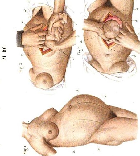 C-Section in medical text, 1864